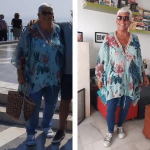 carmen antes y después de su operación de reducción de estómago